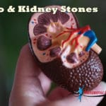 Can Keto Diet Cause Kidney Stones? | Is Keto Bad for Your Kidneys?