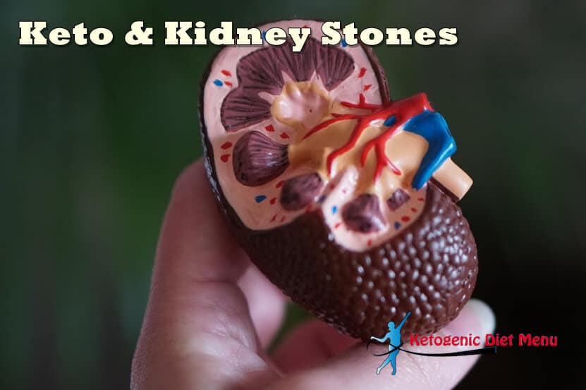 What Foods Cause Kidney Stones on Keto Diet?